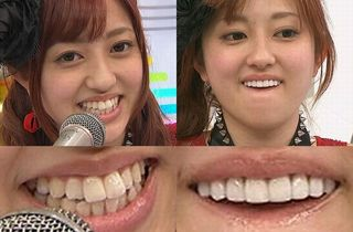 菊地亜美の出っ歯と整形後の歯
