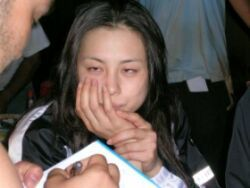 米倉涼子の斜視